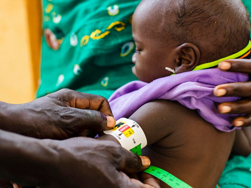 A mom holds a small child on her lap while we see the hands of a community health worker holds a MUAC (middle upper arm circumfrence) band around his arm.