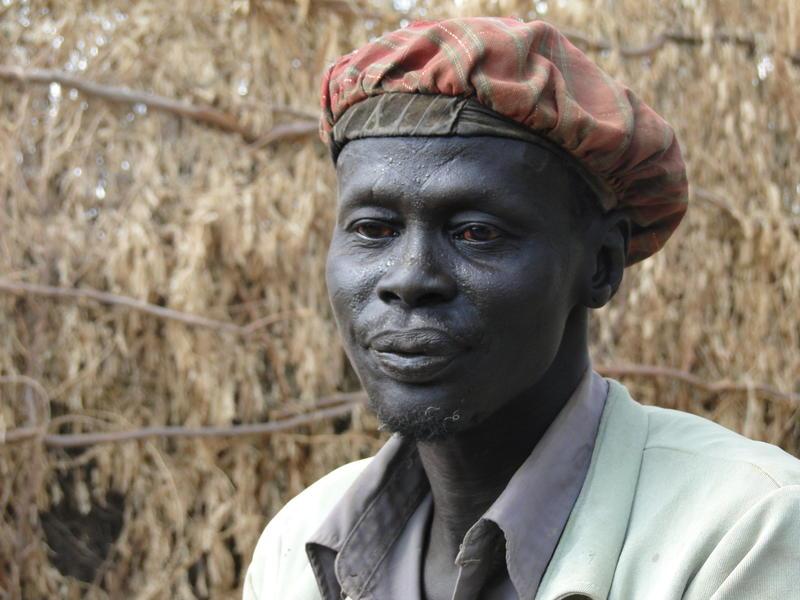 Daniel, former Sudanese soldier, suffering post-traumatic stress