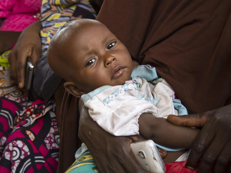 Six-month-year-old daughter Falmata, was diagnosed with severe malnutrition