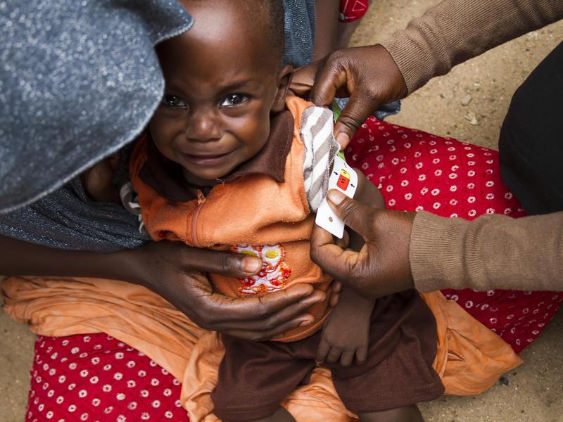 Nigeria Maiduguri Yobe malnutrition
