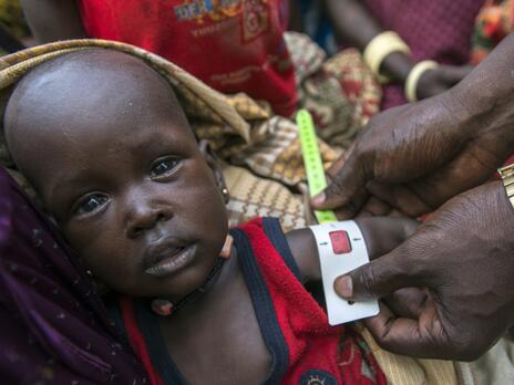 in South Sudan, a baby boy's arm is measured with a specially designed tape for signs of malnutrition.