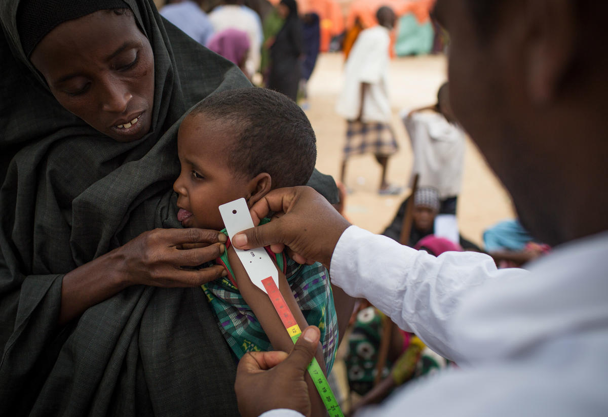 A health worker measures a child's arm for signs of malnutrition at a camp outside Mogadishu