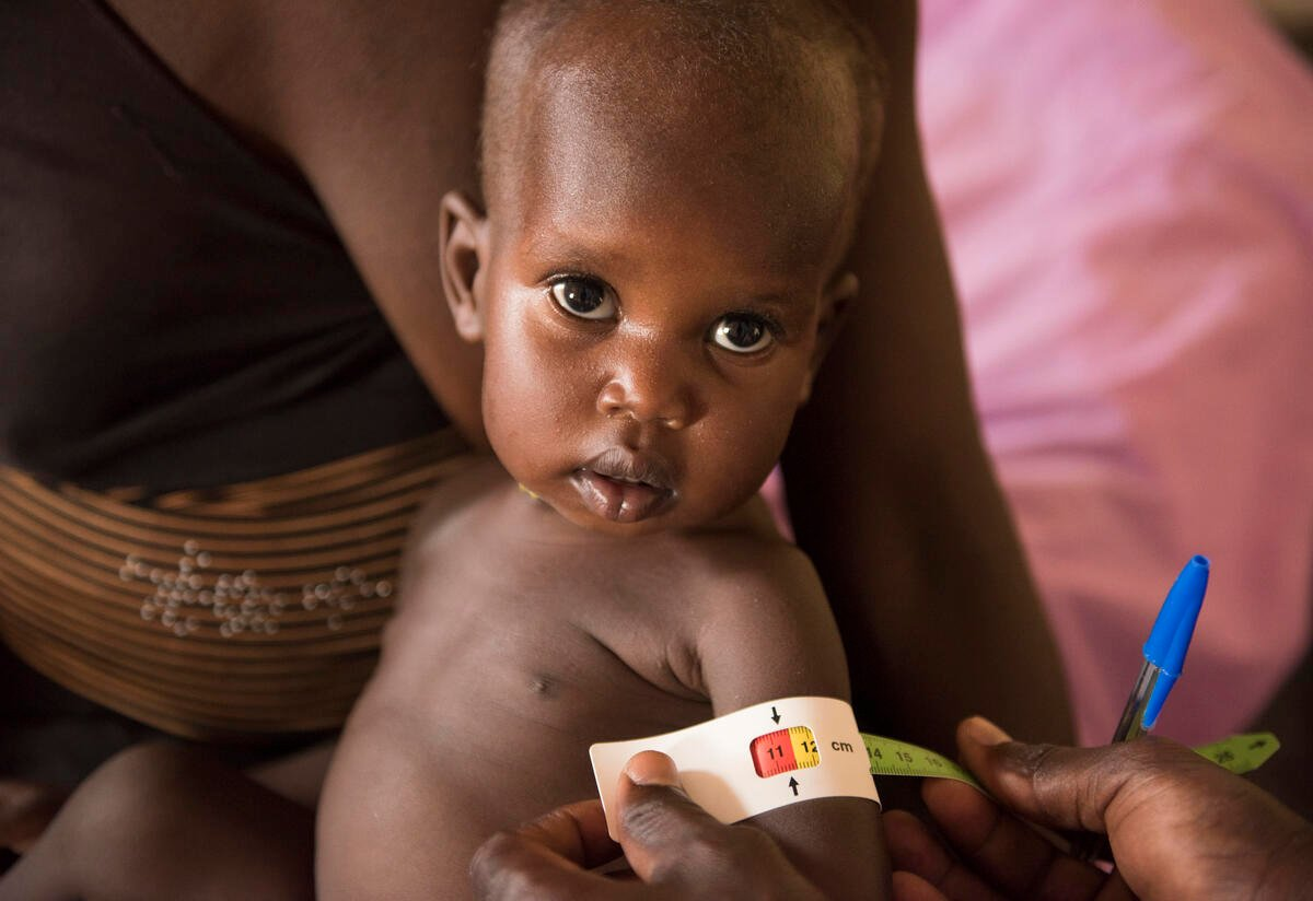 A child has their measurements taken in IRC's malnutrition stabilization center in Panthou, South Sudan.
