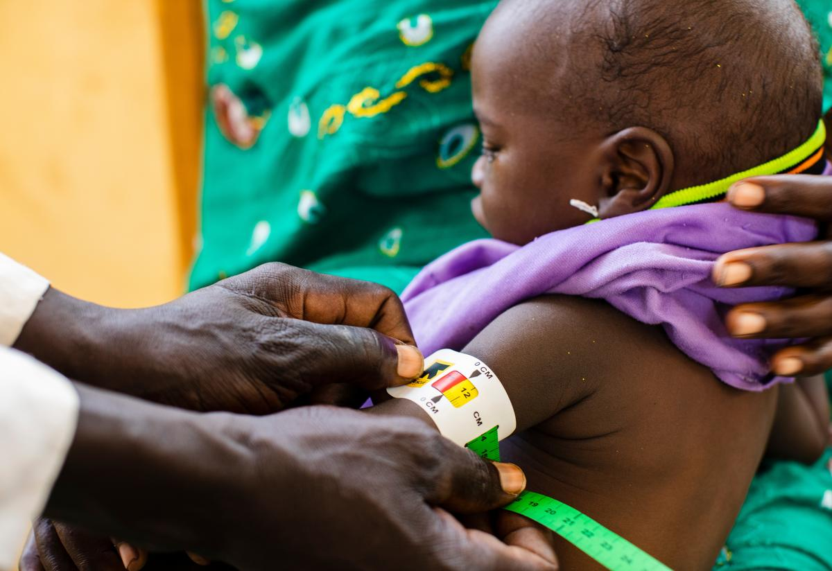 Staff at an International Rescue Committee health center in Chad measure a baby's upper arm with a special armband that can help diagnose acute malnutrition.