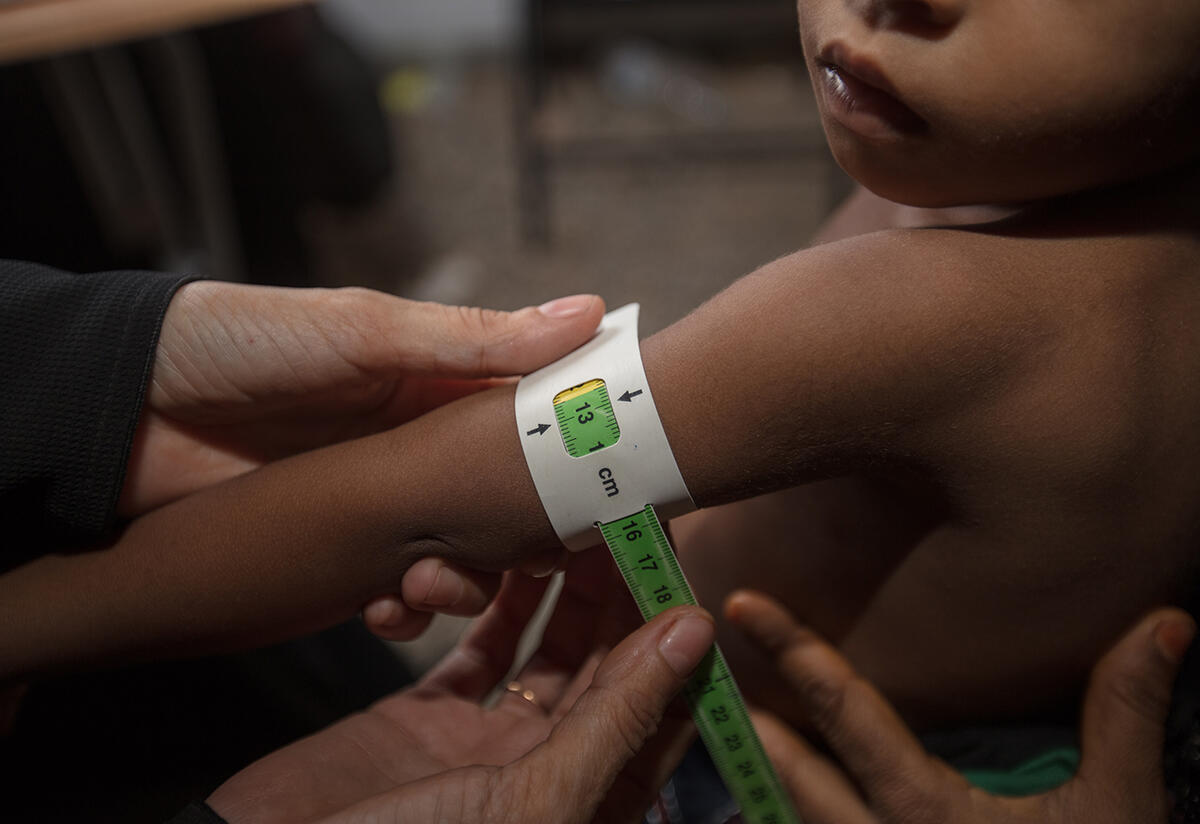 Closeup of a health worker measuring a child's upper arm circumference while checking for signs of malnutrition.