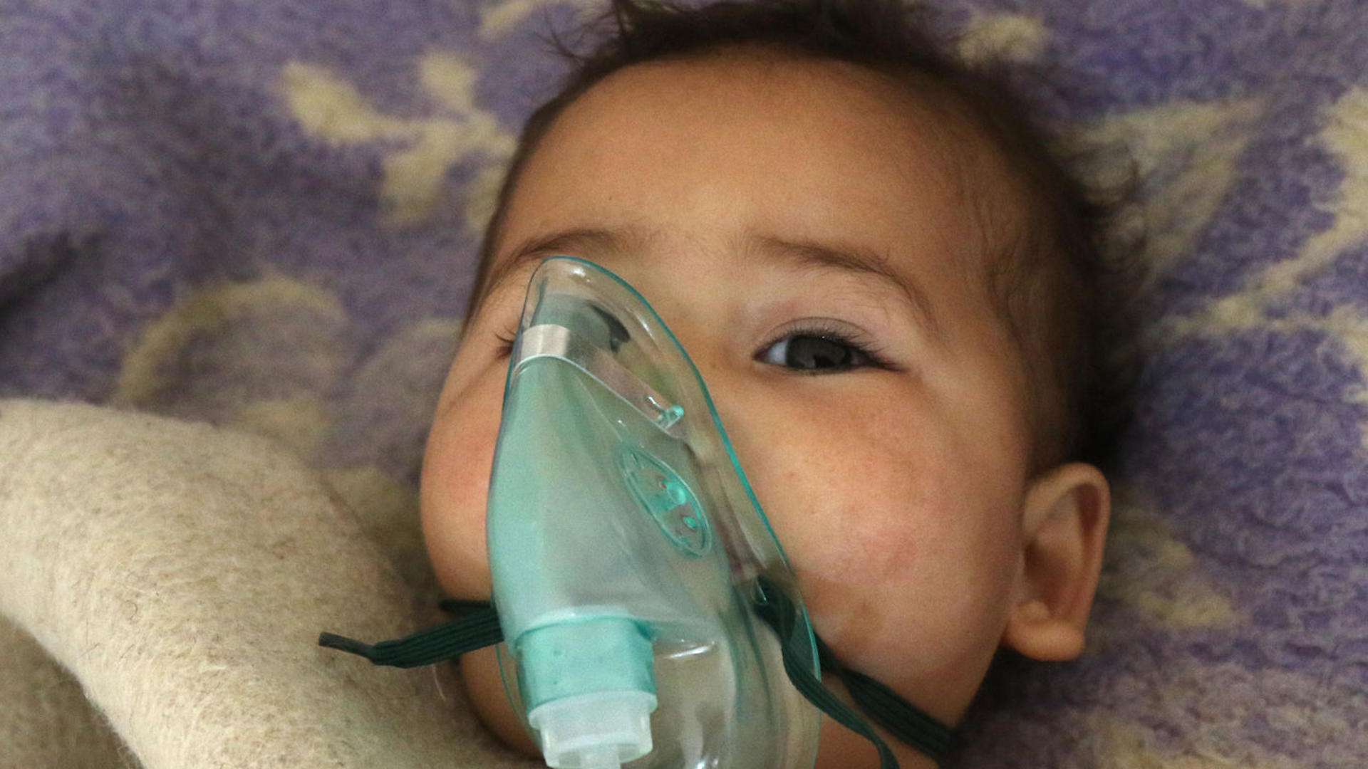 A small child injured in a suspected chemical gas attack in Idlib, Syria receives treatment  with an oxygen mask