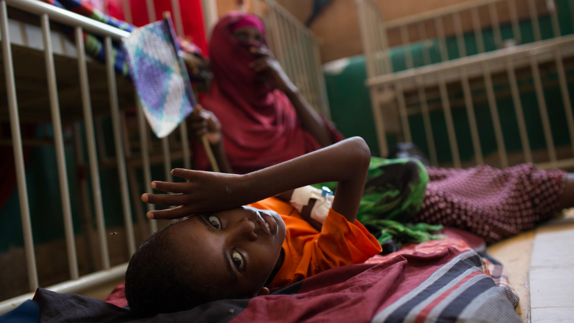 A young boy with severe acute malnutrition receives treatment at the Banadir District Hospital in Mogadishu, Somalia.