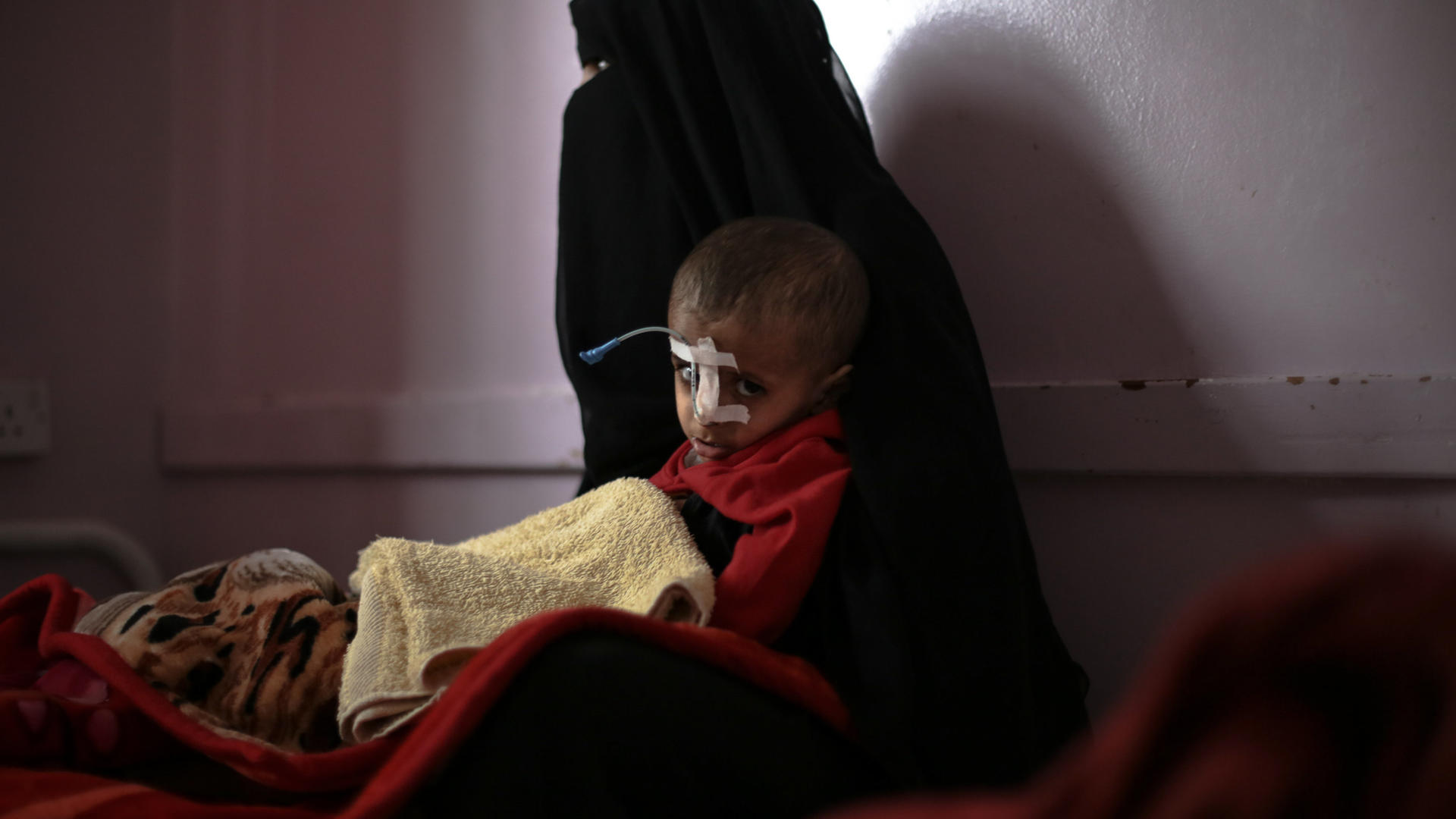 Malnourished child with his mother in Yemen