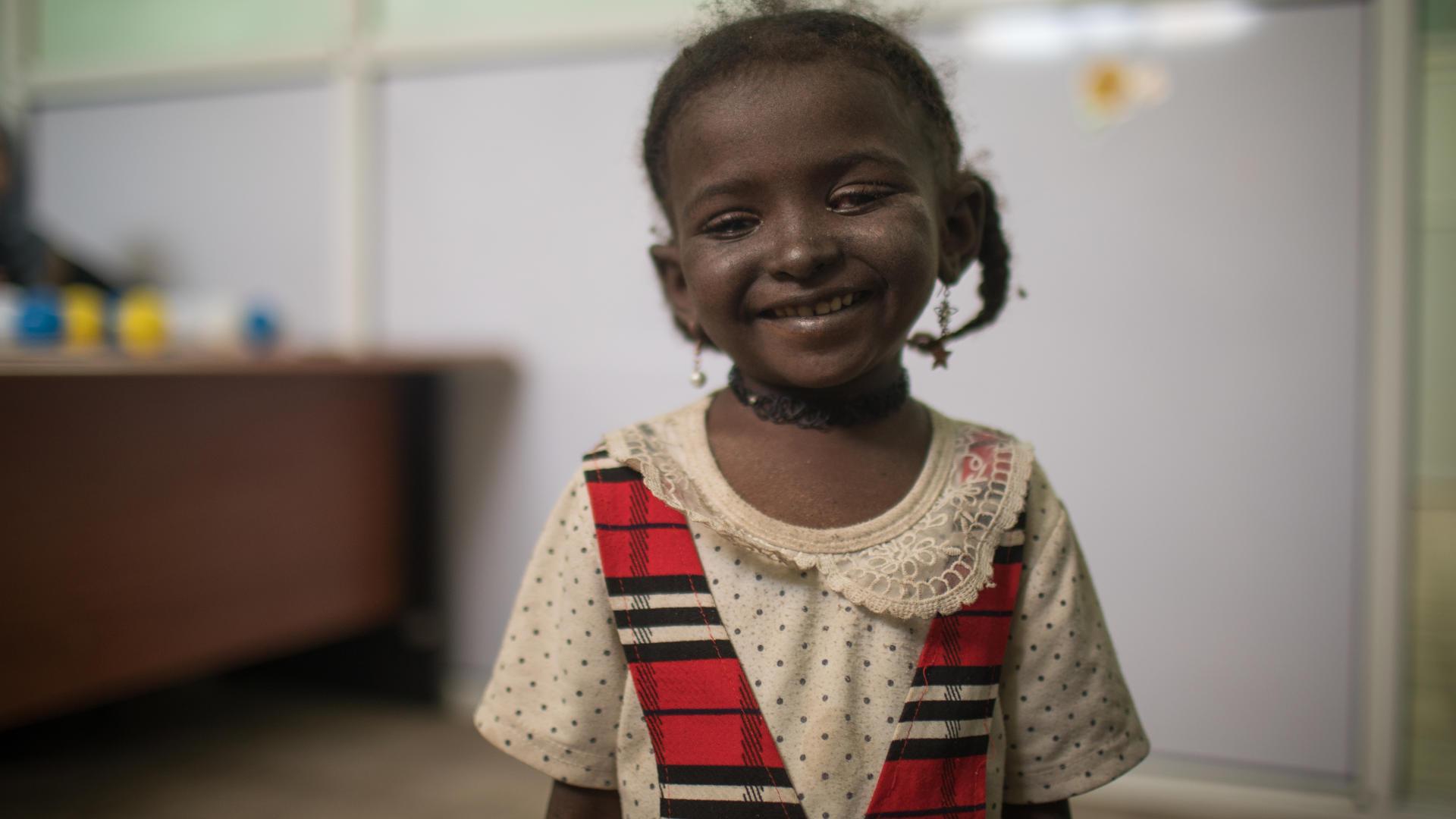 Five-year-oldYousra from Yemenissuffering from cancerin her left eye.