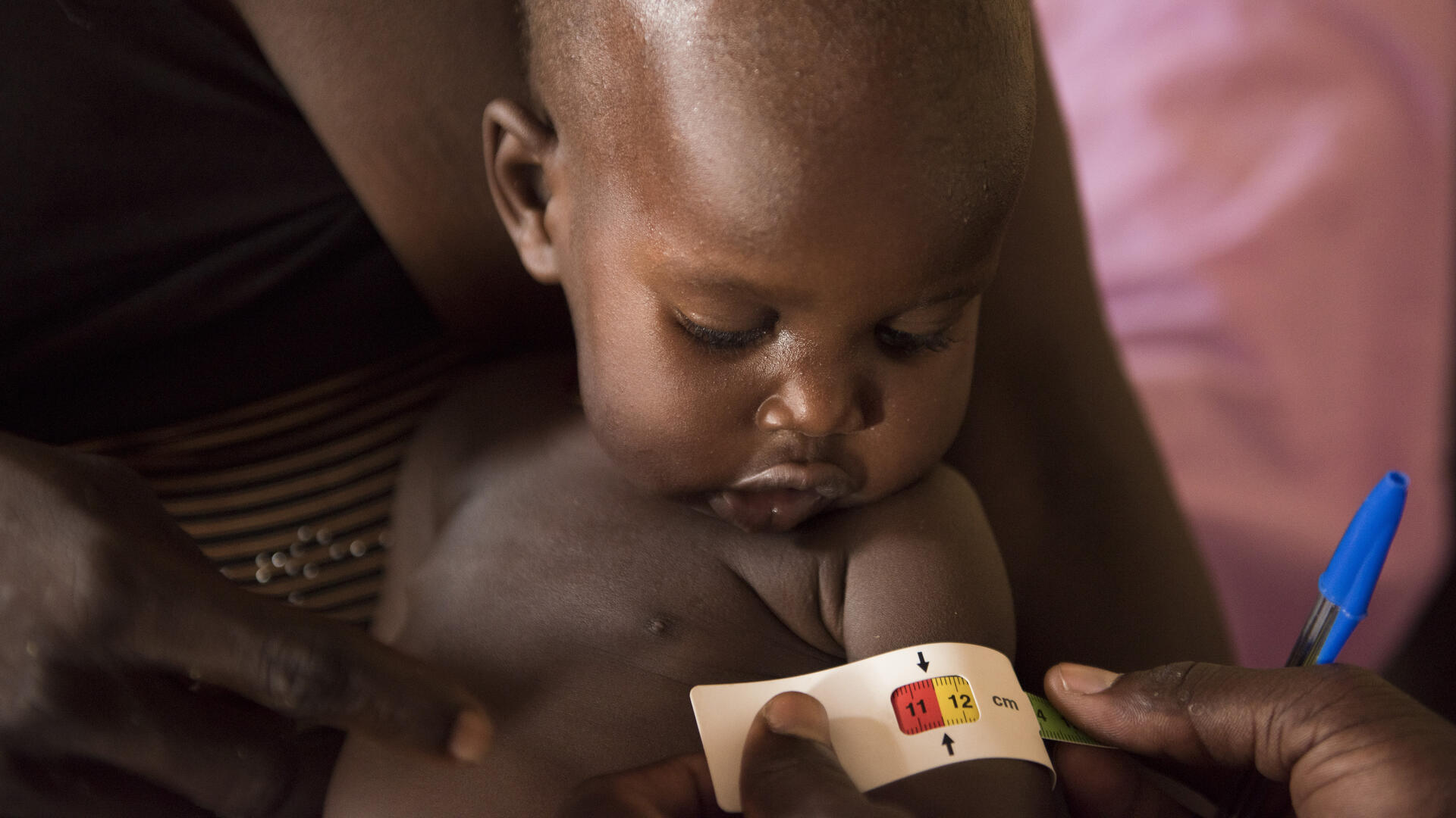 A MUAC tape around a South Sudanese baby's upper arm shows that he is at risk of acute malnutrition