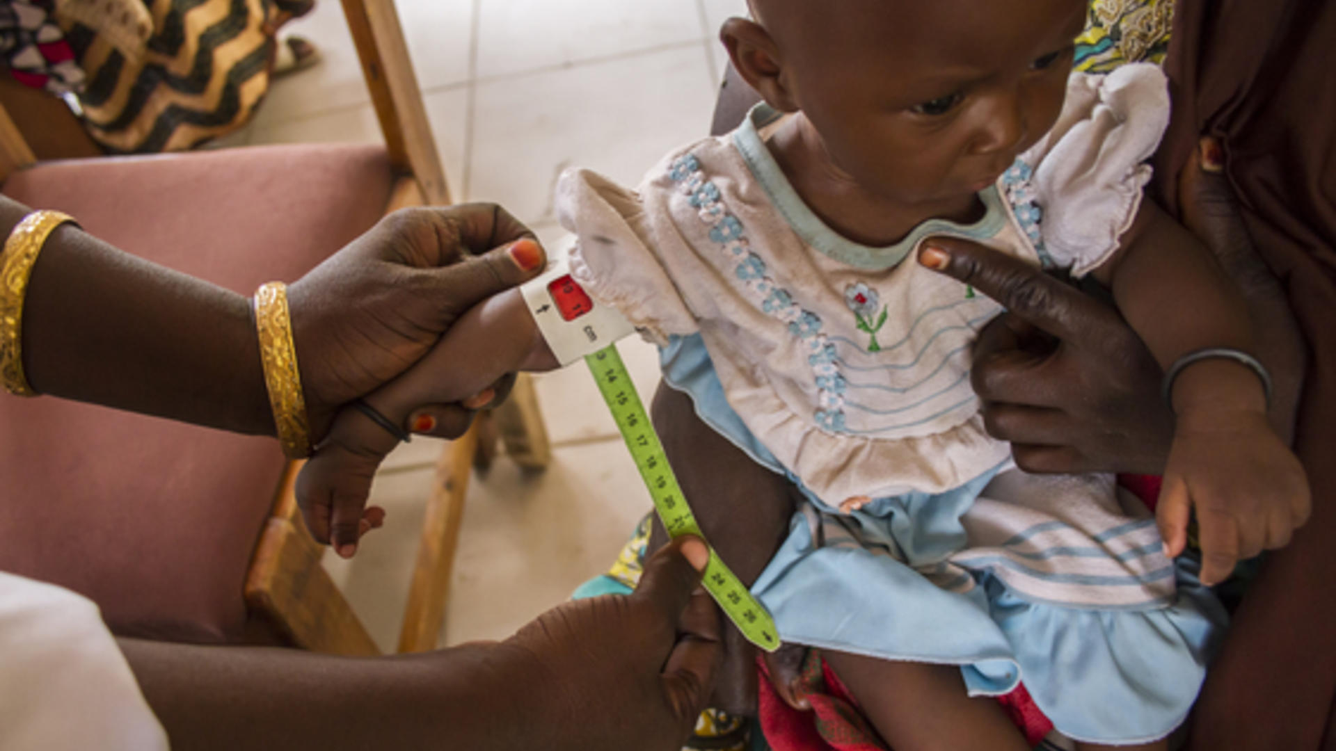 Six-month-year-old Falmata Usman with severe malnutrition
